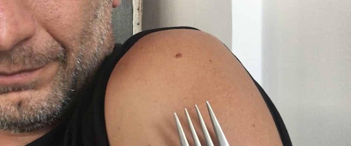 zlica cepivo